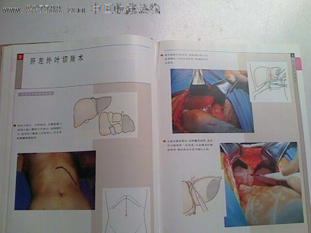 医院检报告单模板,超报告单模板,医院检验报告单模板,肝胆超检报