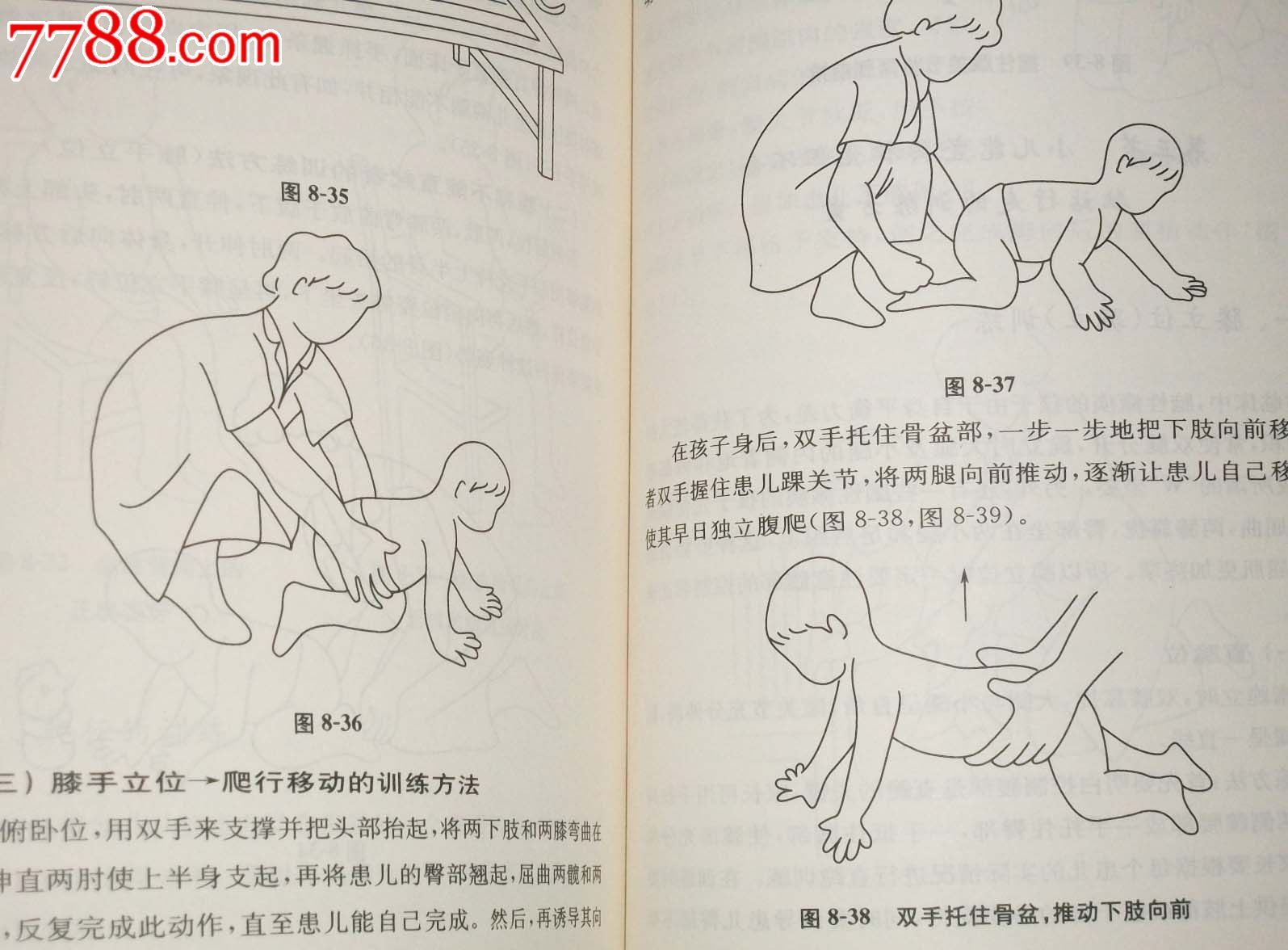 图解小儿脑瘫按摩与训练